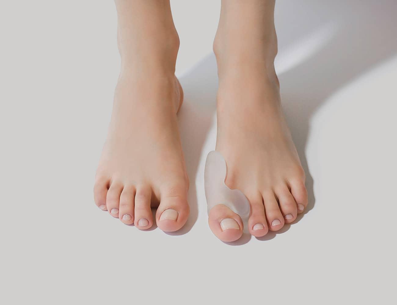 foot with bunion cushion