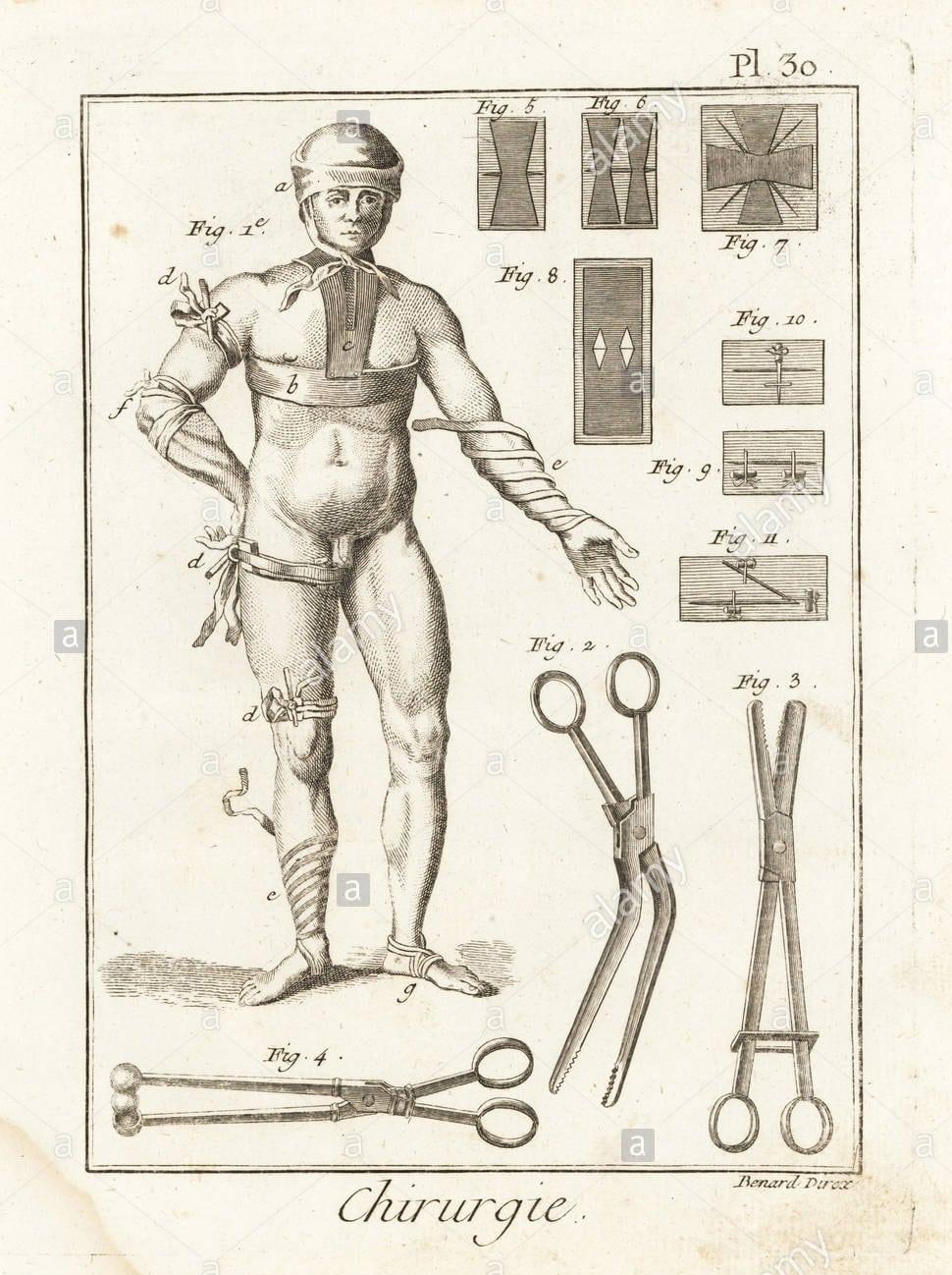 18 th century bandage sketch