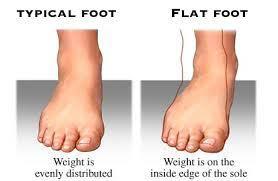flat feet sketch